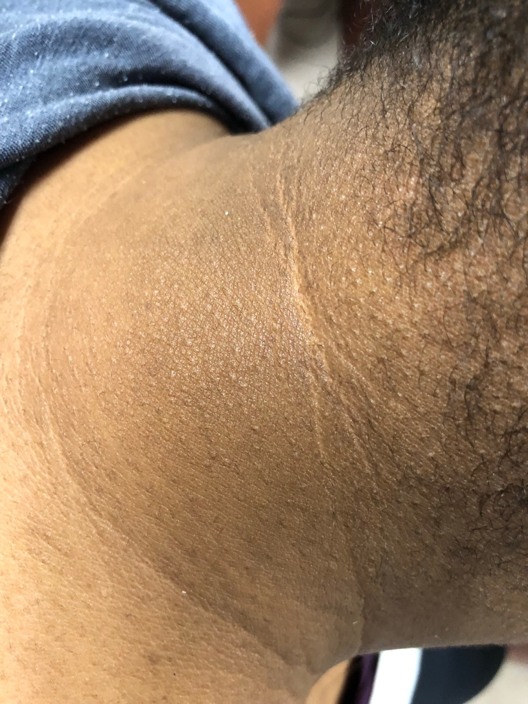 Acanthosis Nigricans of the neck - a sign of insulin resistance
